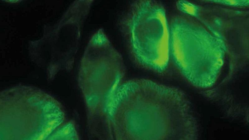 FLUMIAS ist ein Mikroskop, mit dem auf der ISS lebende Zellen untersucht werden. (#03)